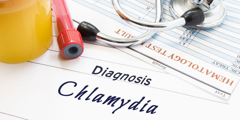 Chlamydia Test Overview