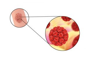 HPV Can Lead To Cancer