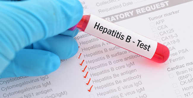 Personalabs Hepatitis B