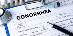 gonorrhea testing