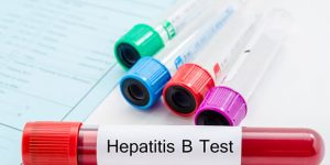 Everything You Need To Know About Hepatitis B Testing