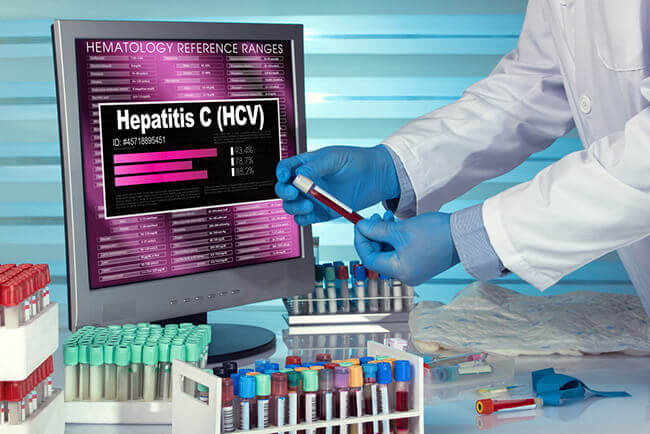 Everything You Need To Know About Hepatitis C Testing