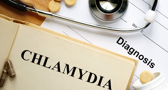 How Is Chlamydia Treated